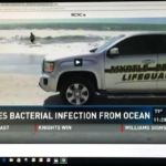 NBC Reports:  Charlotte Man Sick After Swimming In Myrtle Beach Ocean